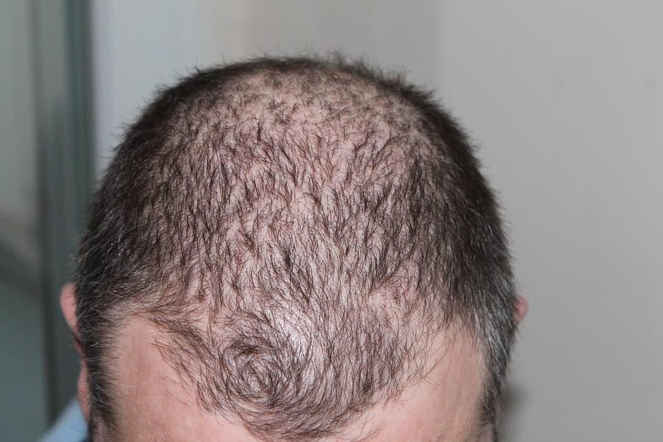 perte des cheveux ralentie